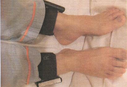 アクチグラフ検査(周期性四肢運動の測定)