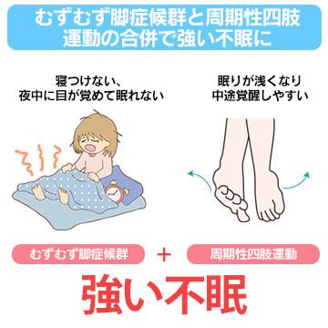 むずむず脚症候群(レストレスレッグズ症候群)