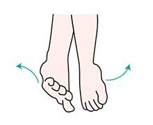 周期性四肢運動障害
